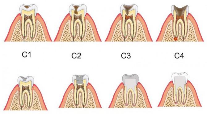 虫歯治療の種類トリミング後