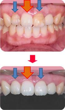 セラミックで天然の歯と区別がつかない、自然な仕上がり