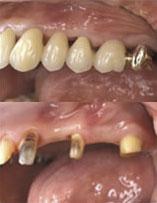 歯の根っこがあったところに人工の根「インプラント」を埋め込む