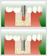 歯を削らずに処置するインプラント治療