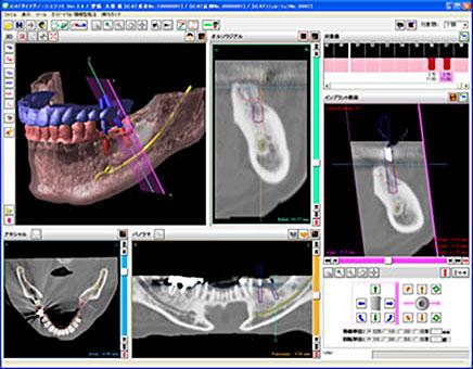 確実な診断や手術のシュミレーション
