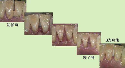 歯石取り.jpg
